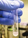 Spermiogrammia Analisi del liquido Seminale