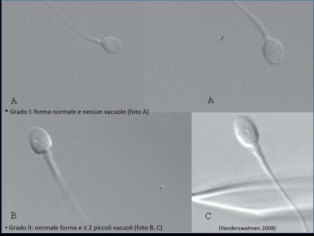 Classificazione dei Vacuoli
